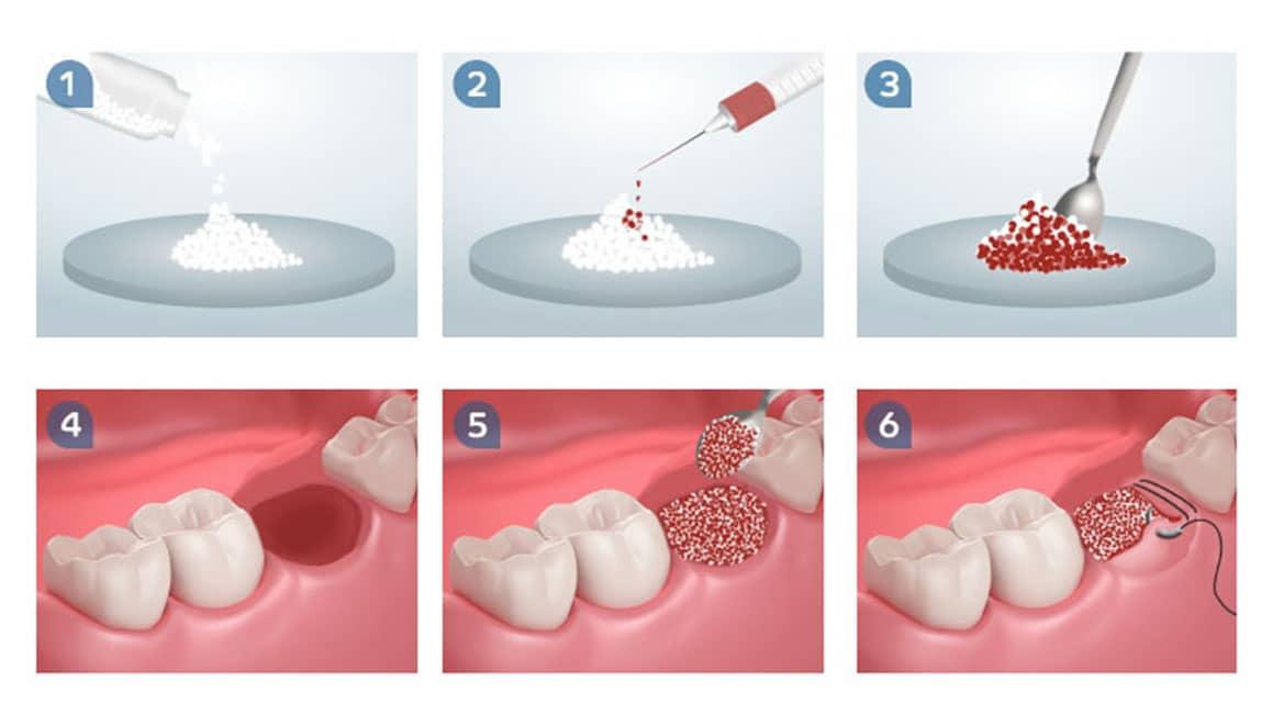 Dental adbone BCP