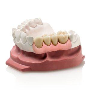 Gingifast Elastic denture